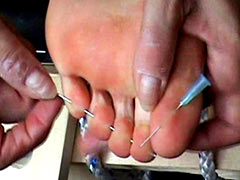 Needles in the toes